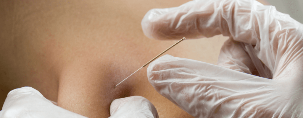 Dry Needling Downtown Ottawa, Kanata & Stittsville, ON